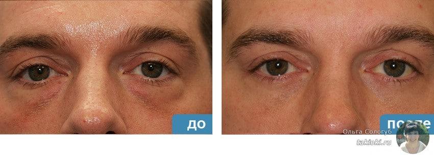 фото до и после карбокситерапия век