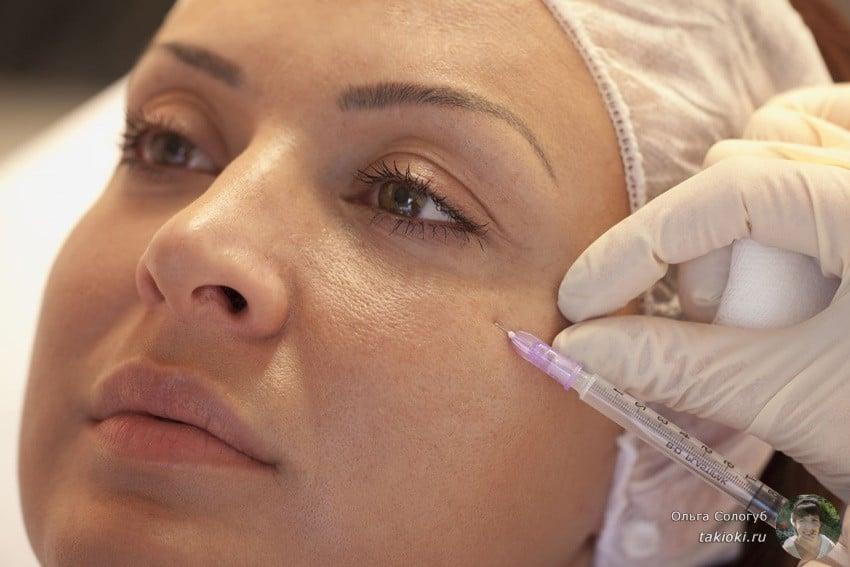 отзывы о косметических процедурах