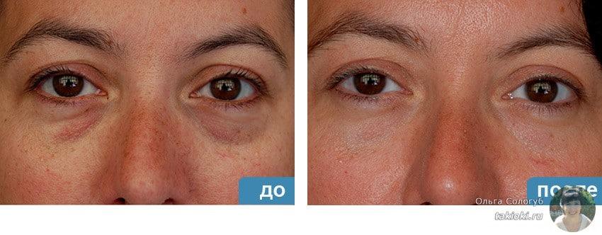 Фото до и после процедуры лифтинга век