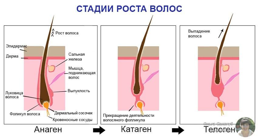 Пересадка волос на голове – методы и противопоказания