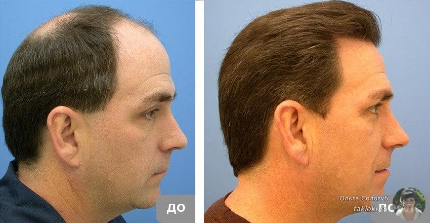 фото до и после применения ампул мужчина