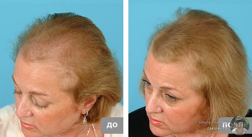 фото до и после применения ампул женщина