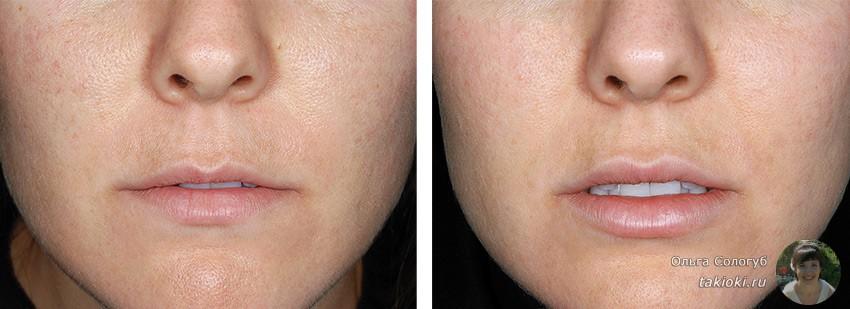 увеличение губ ботоксом чем вреден для здоровья