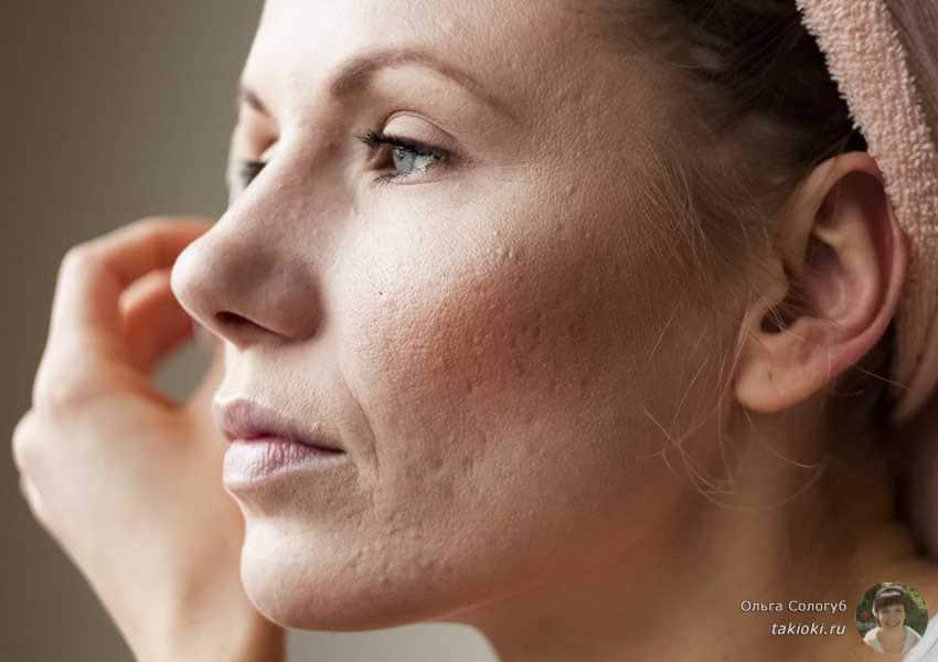 как сделать рисовый увлажняющий скраб для сухой кожи
