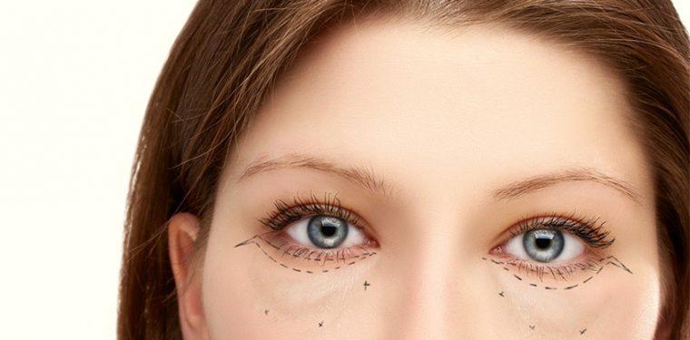 Все причины, почему появляются большие мешки под глазами у женщин и о чем они сигнализируют