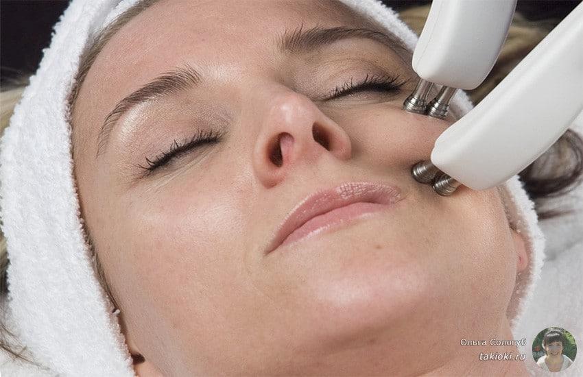 подтяжка лица с помощью микротока