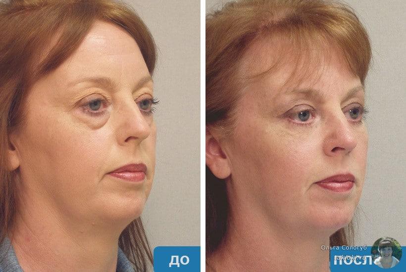 хирургический метод удаление мешков под глазами