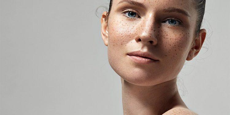 Рейтинг лучших отбеливающих кремов для лица — от косметики масс-маркет до профессиональной